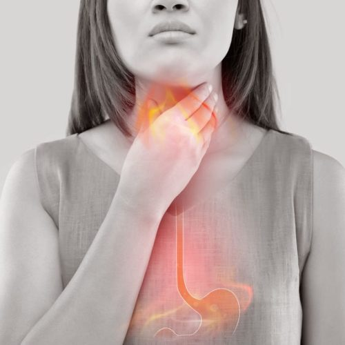 Angina – Co to jest? Objawy, choroba i leczenie Anginy