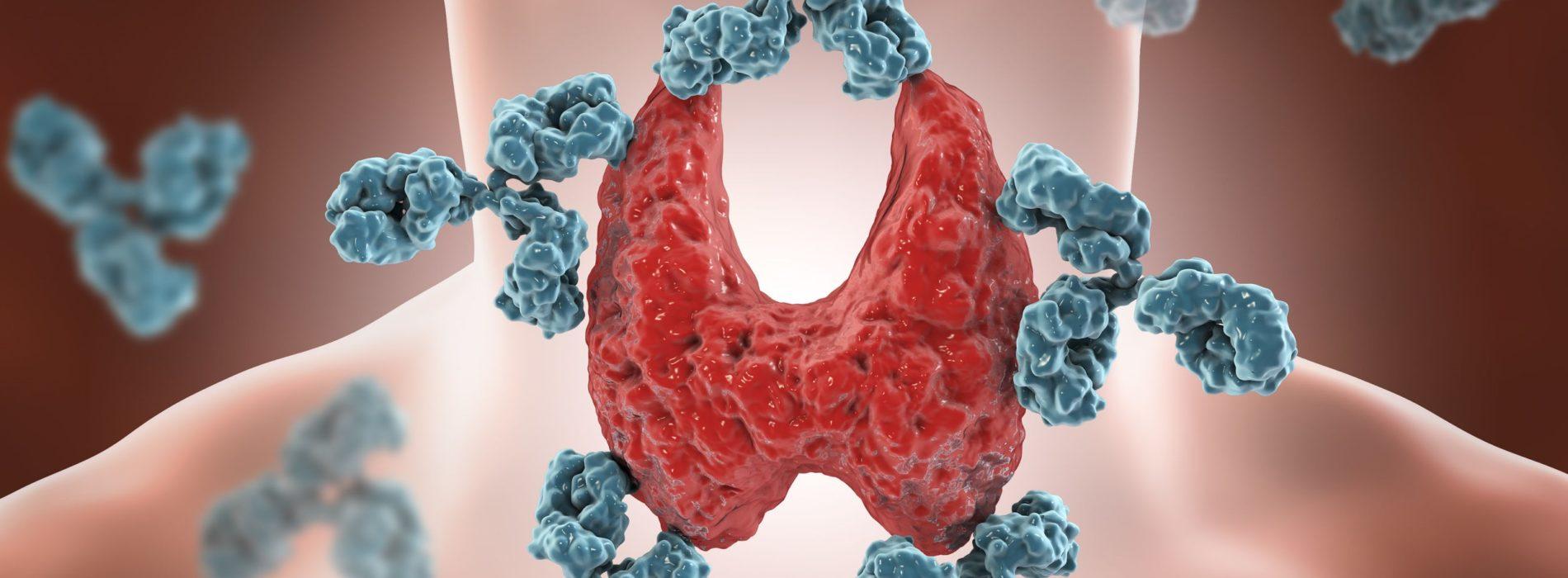 Glikogenozy – choroby spichrzeniowe glikogenu